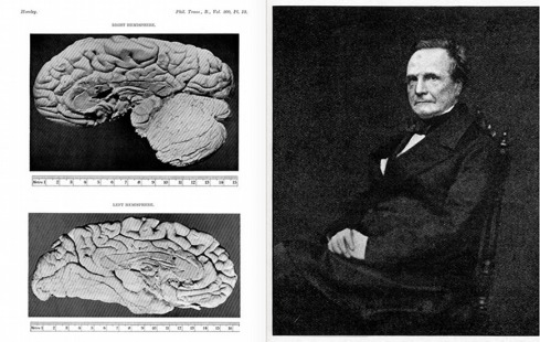http://publicdomainreview.org/collections/a-description-of-the-brain-of-mr-charles-babbage-1909/